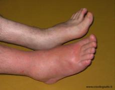 crises de goutte au pied